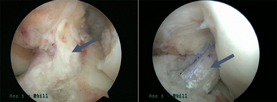 ACL Tear (Left) and ACL Construction (Right) | ACL Injuries