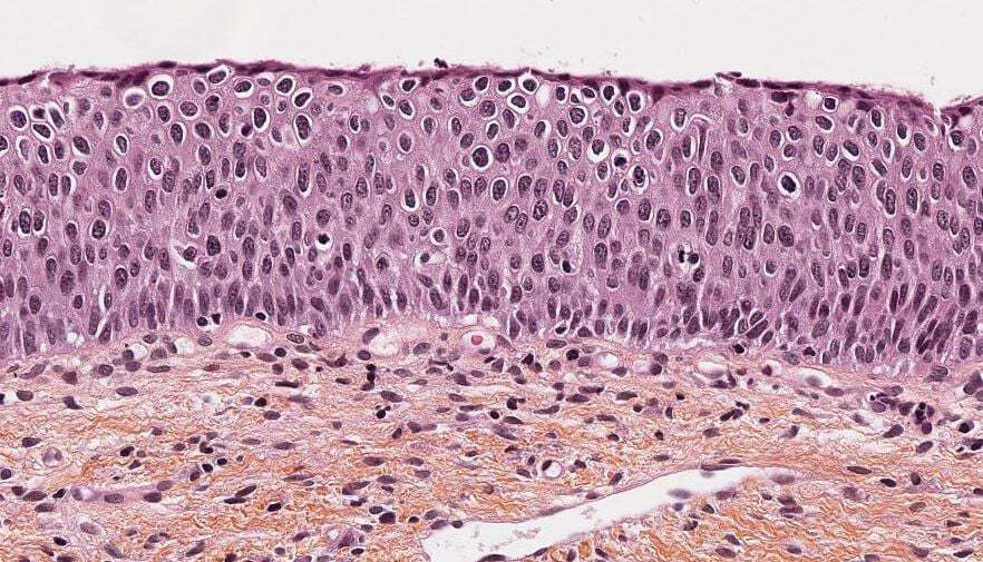Sample of a cervical biopsy