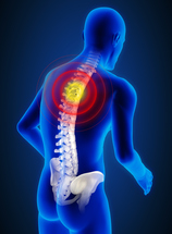 Spinal Instability Treatment Manhattan | New York City (NYC)