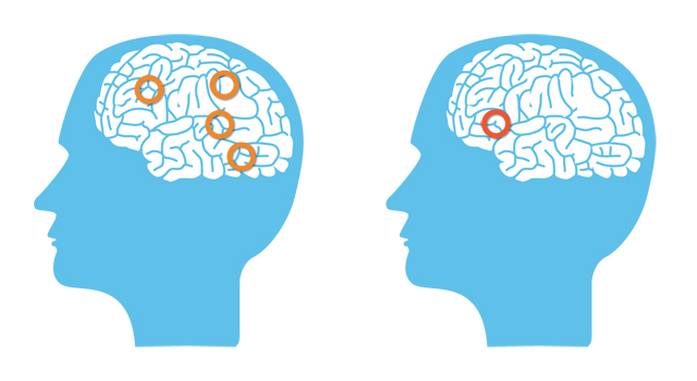 Εγκέφαλος Δυσλεξία Εικόνα