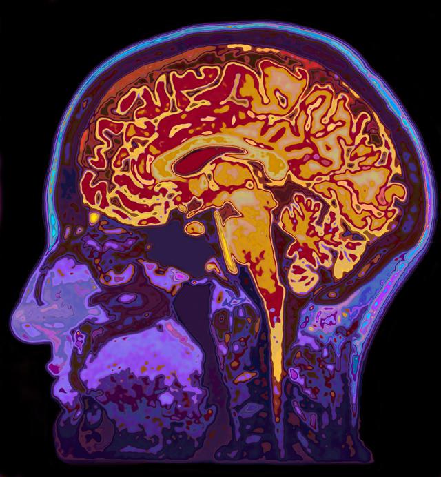 大脑怎么工作?