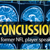 Eblast.concussions-thumb
