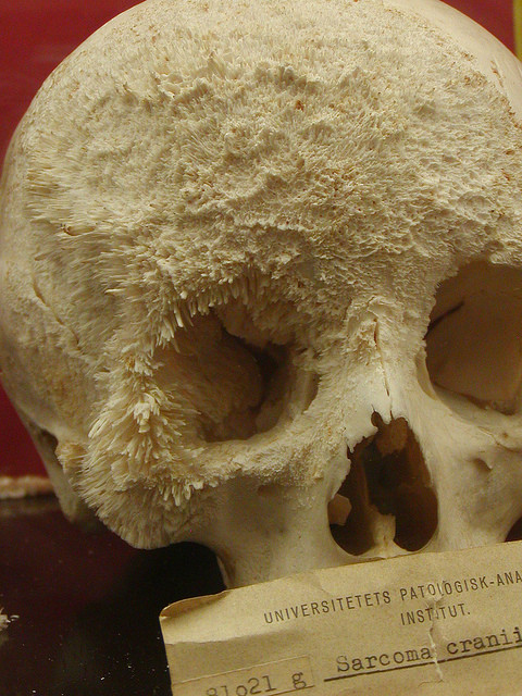 creepy pics - a skull with bone cacner
