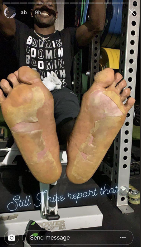 Instagram story from Raiders wide receiver Antonio Brown showing his frostbitten feet.