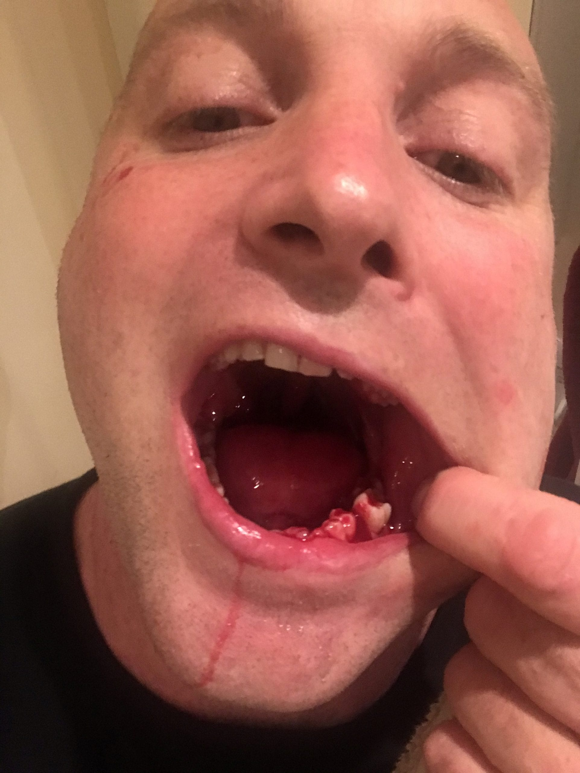 billy taylor tooth pull