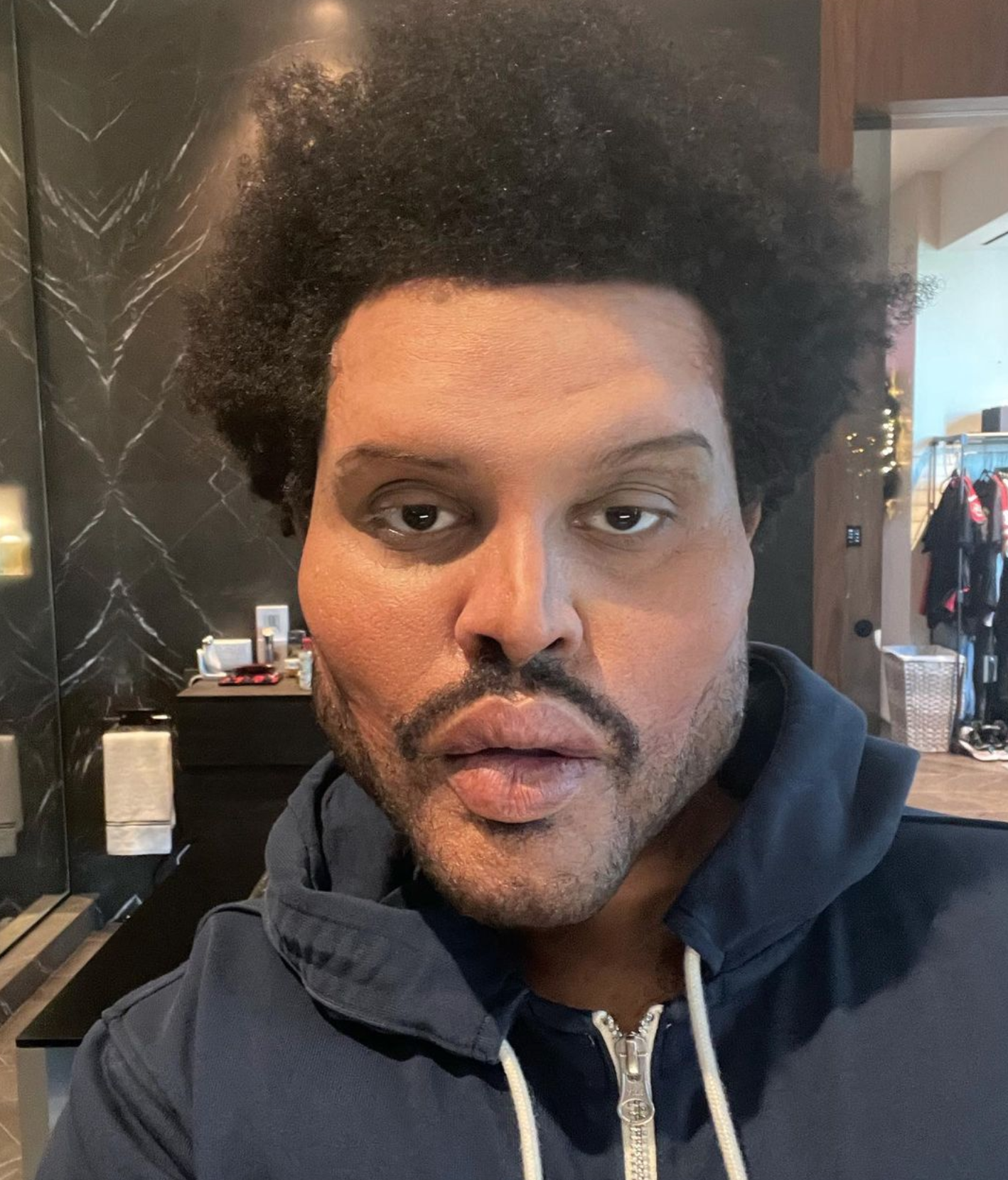 The Weekend posts a selfie of his new face on his Instagram account