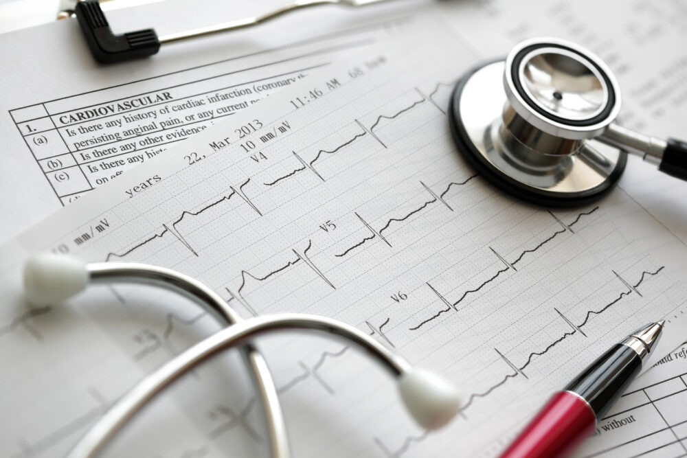 Rationalizing-Cardiology-Care-in-An-Era-of-Hospital-Consolidation-June-2015