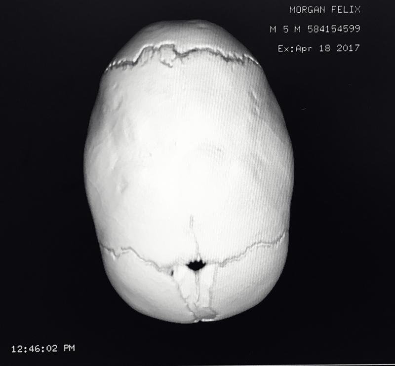 sagittal suture skull