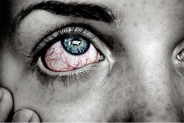 eye care, pink eye and eye infection in Ancaster, ON