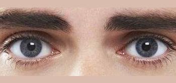 Optometrist, kids eye Amblyopia without Strabismus in Old Bridge, NJ