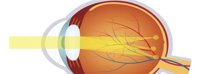 What is Astigmatism?, Eye doctor in Plainview, NY