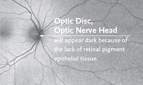 Normal autofluorescence darkness in an optic nerve