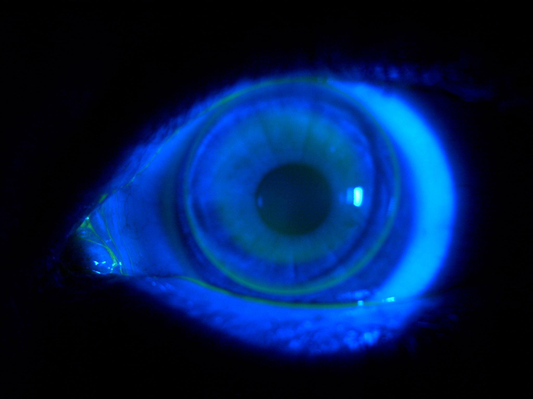 CRT lens