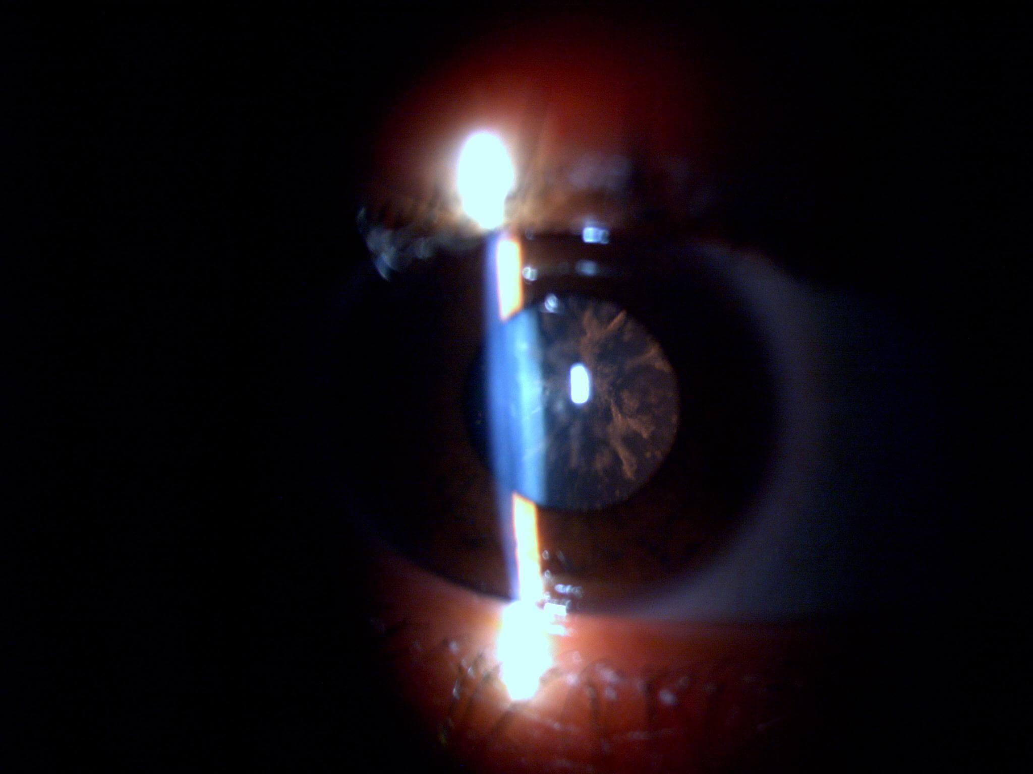 Snowflake cataract