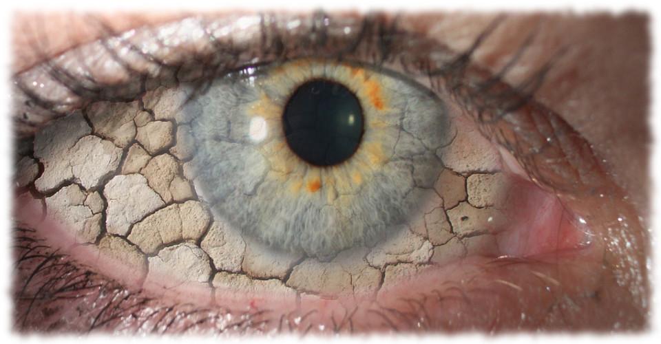 dry eye Cracked