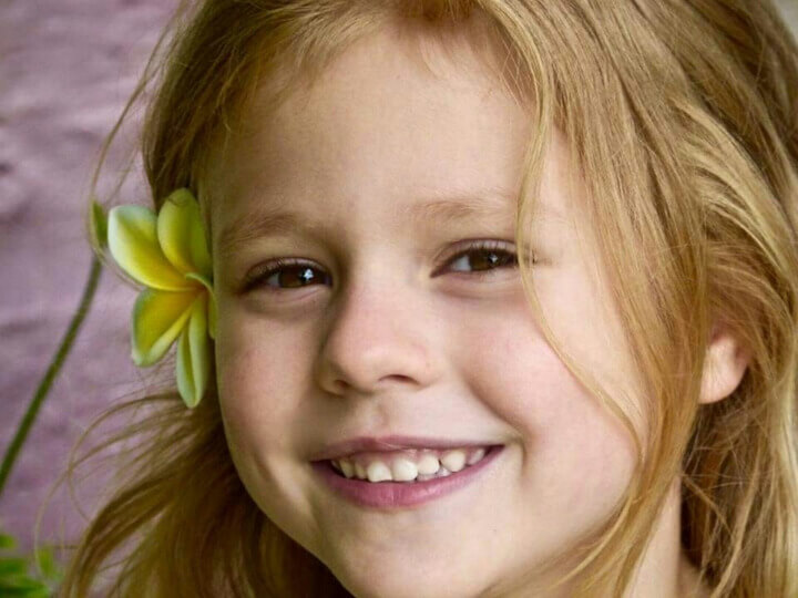 girl-kid-pediatric-eye-care.St_.-Louis-MO-720x540-1