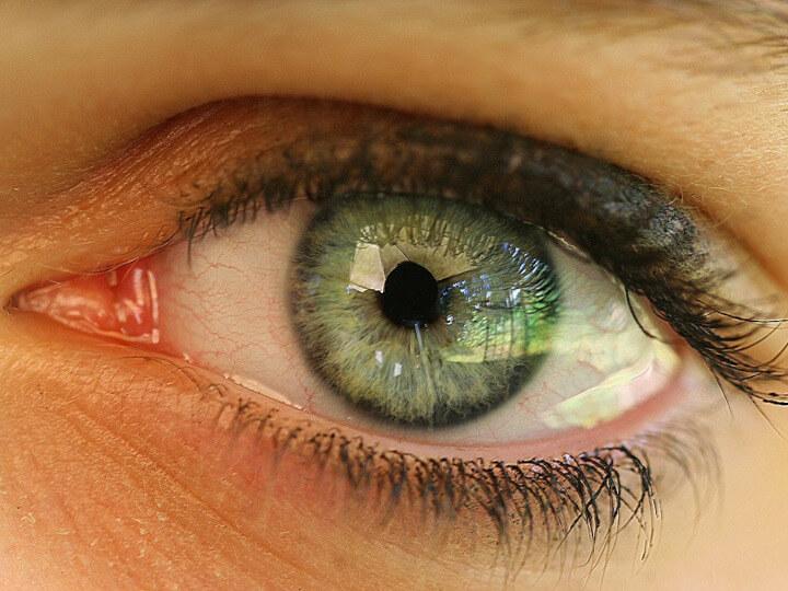 young-women-eye-eye-care-near-me.720x540-St.-Louis-MO