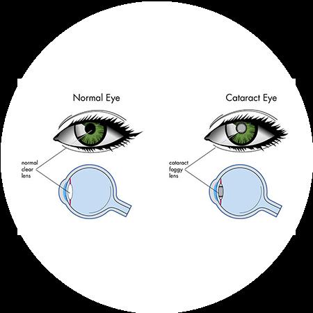 cataract eye crossection