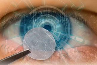 Eclipse Amnion Membrane Therapy Thumbnail