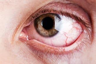 Dry Eye Treatment in Timonium, MD