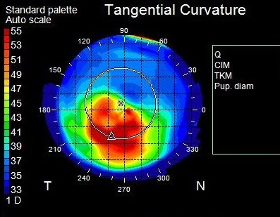 topography keratoconus 3