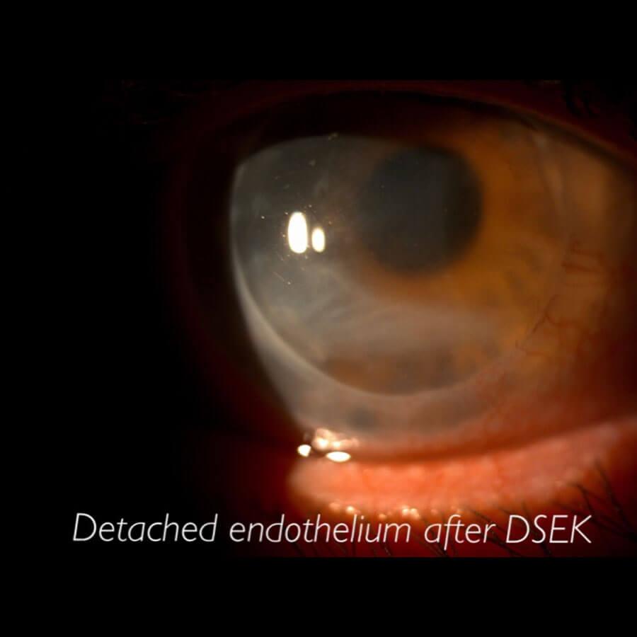 Detached Endothelium After DSEK
