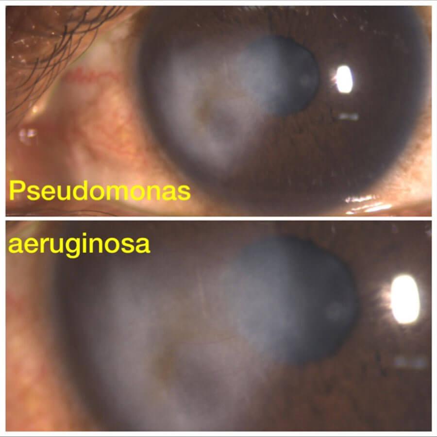 Pseudomonas and Aeruginosa
