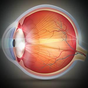 Illustration of Cataracts