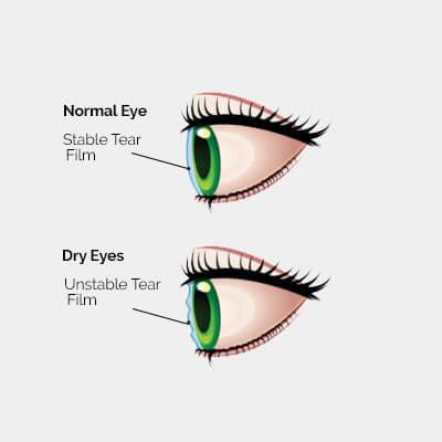 dry-eye-diagram-2a