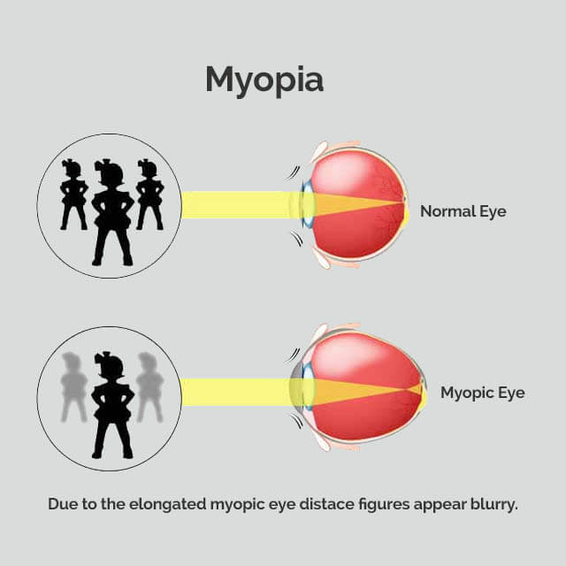 myopia-2-diagram-sqr