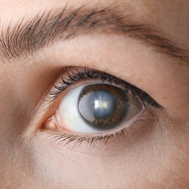 Close-Up-Cataract-Eye-1