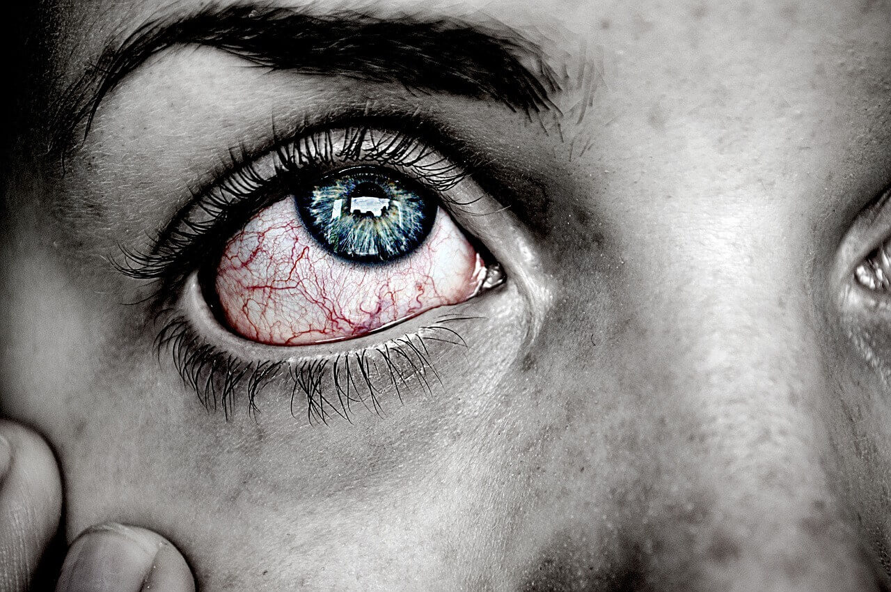 Pink Eye or an Infection
