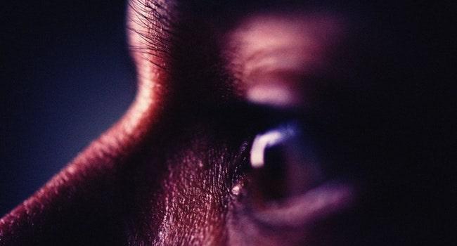 Glaucoma-min