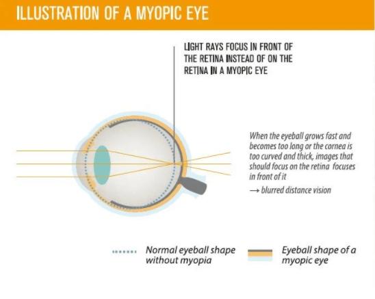 eye exams near me