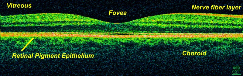 Retina OCT800