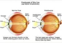 Presbyopia.jpeg