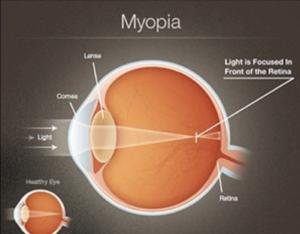 miopie ce minus cum să îmbunătățiți vederea în câteva ore
