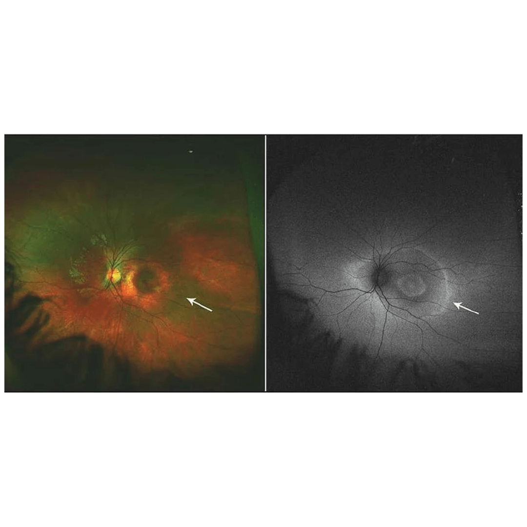 AutoFluorescence with Widefield Imaging (1)