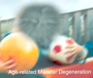 age related macular degeneration treatment