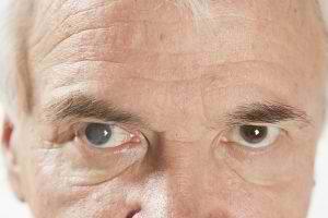 Cataracts-300x200