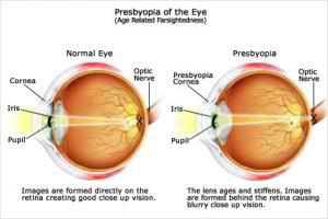 presbyopia-of-the-eye-300x200
