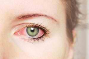 red-eye-300x200