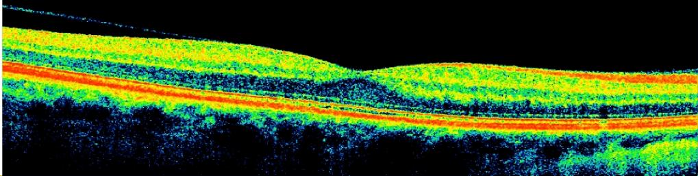 Normal Retina Cross Section iWellness