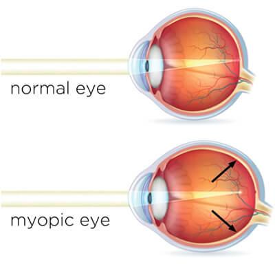 normal vs myopia diagram 1