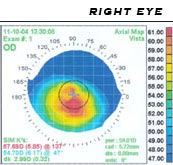 corneal_topography_right_ax