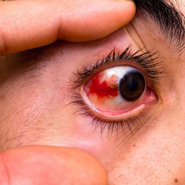 Artisan Optics Common Eye Injury