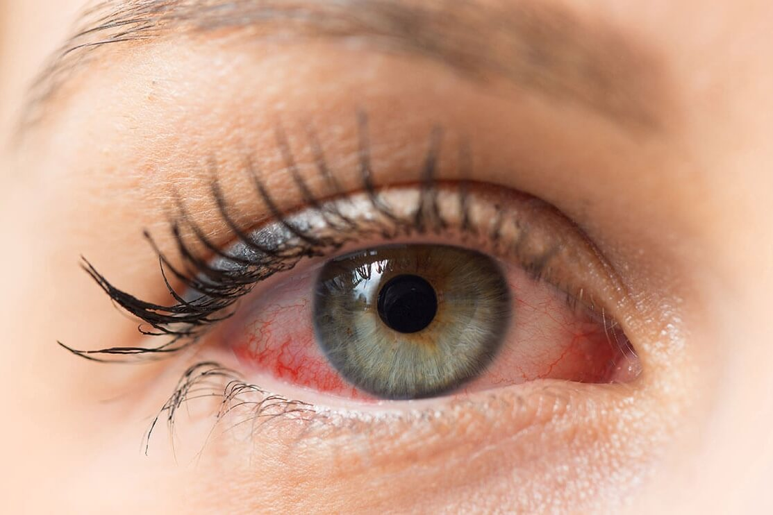 irritated dry eye