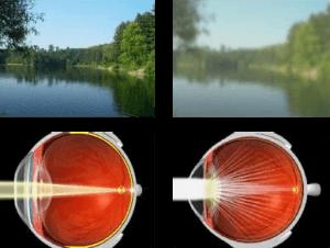 Cataracts 300x226 1
