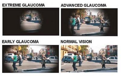 Glaucoma 400x251 1