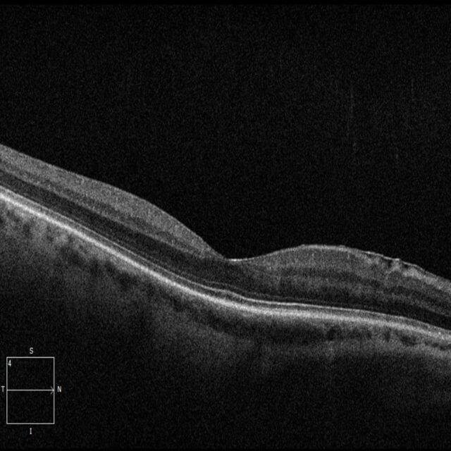 OCT Macular scan